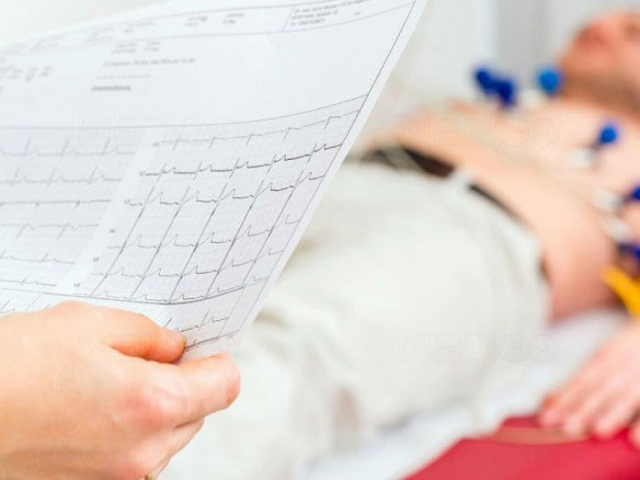 Электрокардиограмма, Главная, Описание методов диагностики