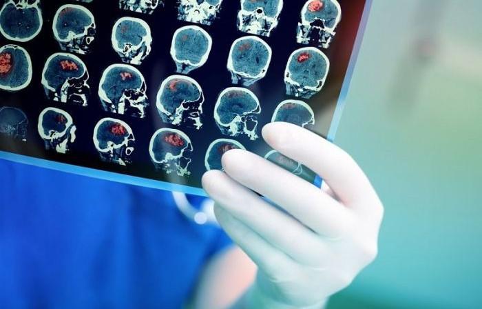 Что такое внутренняя гидроцефалия головного мозга?, Статьи, Нейрохирургия