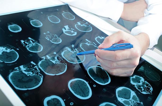 Какие существуют методы лечения менингиомы мозга?, Статьи, Нейрохирургия