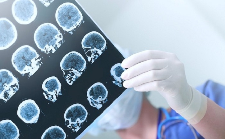 Лечится ли эпилепсия у детей, Статьи, Нейрохирургия