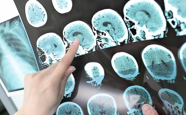 Можно ли вылечить метастазы в головном мозге?, Статьи, Онкология (лечение рака)