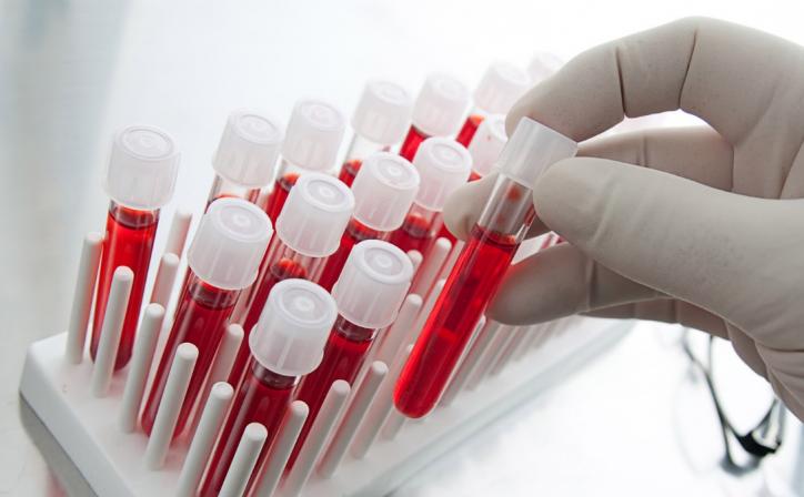 Новый тест крови идентифицирует 10 ранних типов опухолей, Главная, Статьи