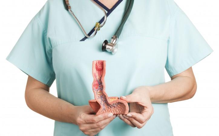 Пищевод Барретта: причины, методы диагностики, лечение, Статьи, Гастроэнтерология