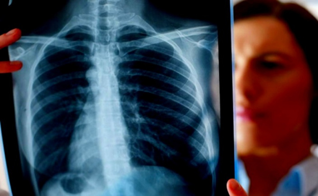 Рак  легких, Главная, Онкология