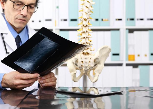 Саркома кости – особенности лечения