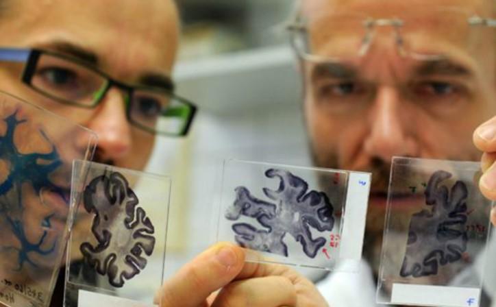 Воздействие препарата против эпилепсии на мозг при болезни Альцгеймера, Главная, Статьи
